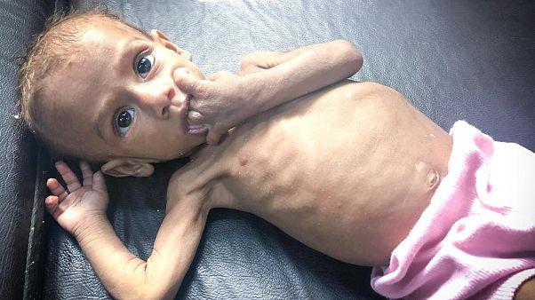 1600 gyermek hal éhen minden nap a háborús zónákban idén