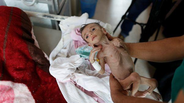 UNICEF: Yemen savaşı çocuklar için canlı bir cehennem