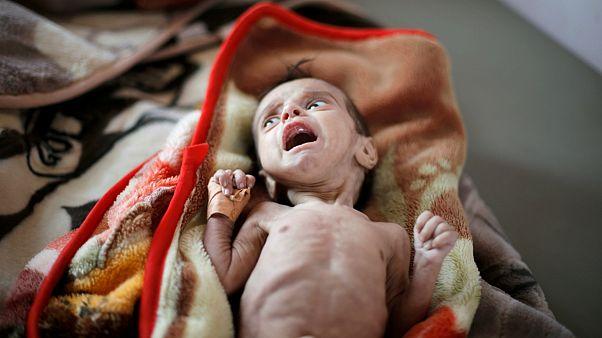 ساکنان یمن از گرسنگی به تغذیه از برگ درختان روی آورده اند