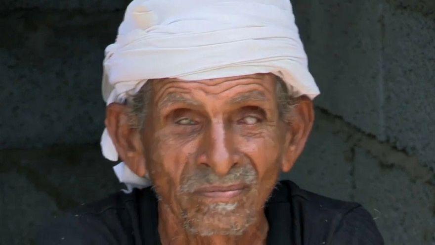 Genetik bozukluk Yemen'de bir köyü kör etti
