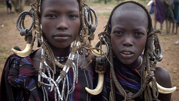50 kız çocuğu sünnet edildikten sonra hastanelik oldu