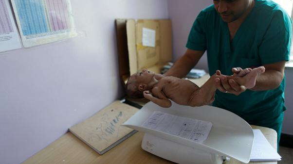 A malnourished baby is weighed in Sanaa, Yemen on Sept. 11, 2018