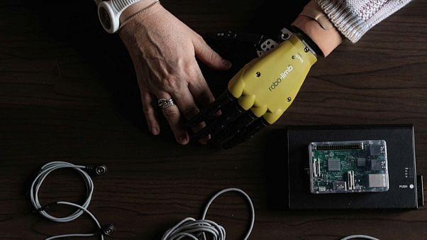 Fühlende Prothesen - Mensch und Maschine werden eins