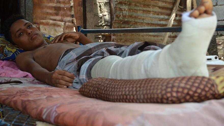 Civilian casualties soar in Yemen's Hodeidah