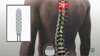 Implantes elétricos ajudam paralisados a andar
