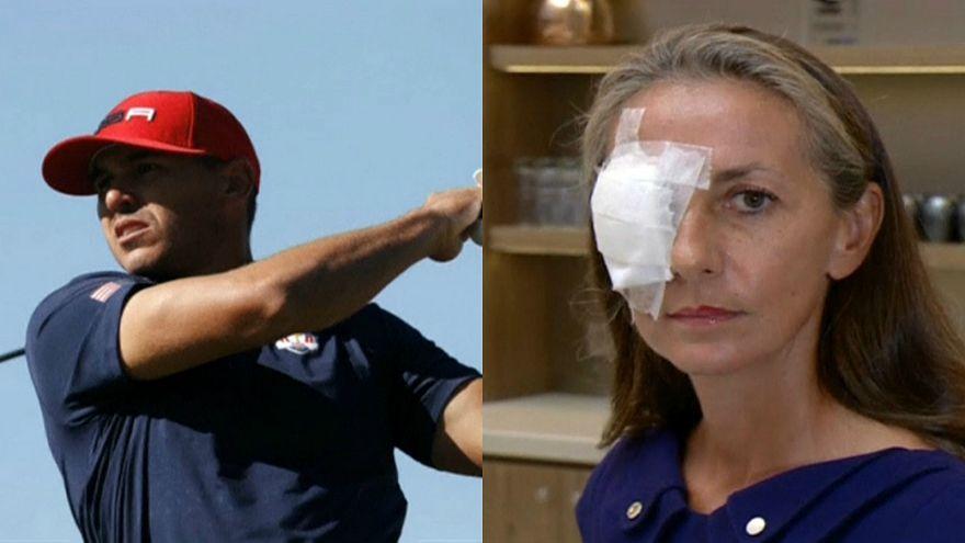 سيدة فرنسية تفقد بصرها خلال منافسات رايدر كوب للغولف