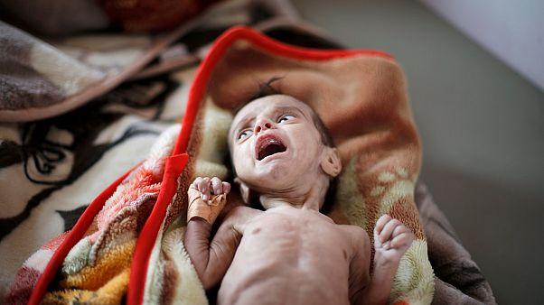تقارير تدق ناقوس الخطر مجدداً ... 821 مليون جائع، وصراعات وكوارث مناخية ترفع الأرقام