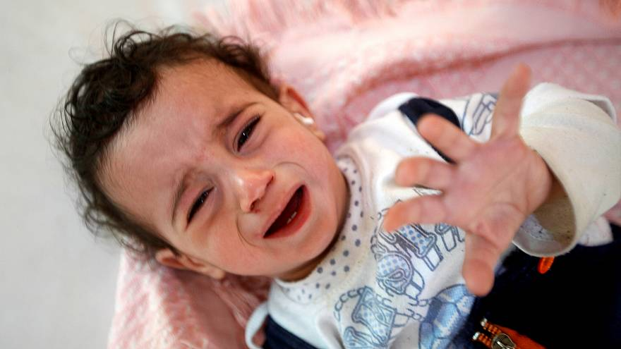 Kolera hastası Yemenli bir kız çocuğu Sanaa'da bir hastanede 11.10.2018