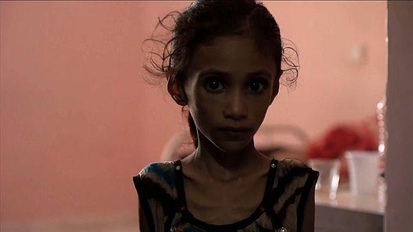 El hambre como arma de guerra en el Yemen