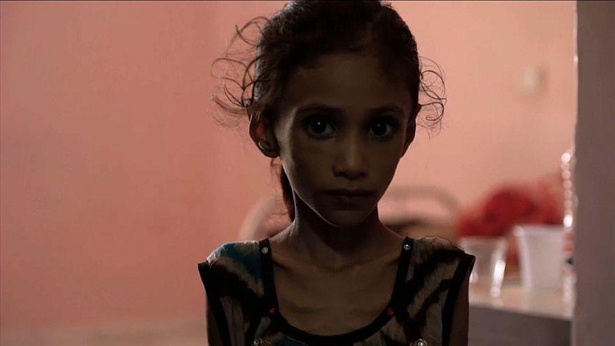 ازدياد أعداد الأطفال الذين يعانون سوء التغذية نتيجة الصراع في اليمن