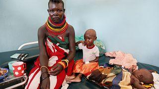 Dünya Gıda Günü: Yeryüzünde her 10 saniyede bir çocuk açlıktan ölüyor