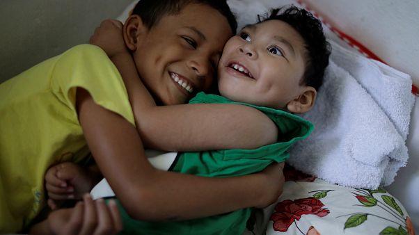 Daniel Vieira, de dos años, nacido con microcefalia, junto a su hermano.