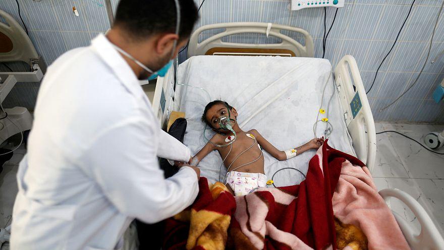 Bir insanlık dramı: Yemen'de 'görülmemiş açlık' kapıda