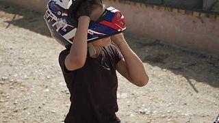 Noch mehr Kinder mit Fehlbildungen - Neue Untersuchung