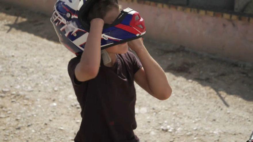 Francia retoma la investigación sobre los niños sin brazos