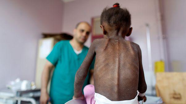 امل حسین، نماد کودکان گرسنه یمن درگذشت