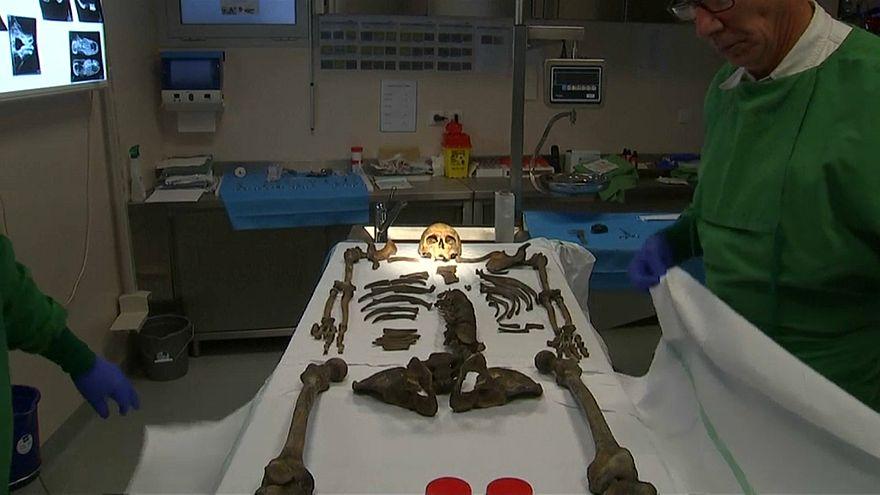 فيديو: أطباء فرنسيون يحاولون تحديد هوية هيكل عظمي لجندي سقط قبل مئة عام