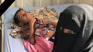 """اليمن: بعد أمل حسين.. آدم علي يقضي بسبب سوء التغذية ونعي أممي """"إلى جنات الخلد يا آدم"""""""