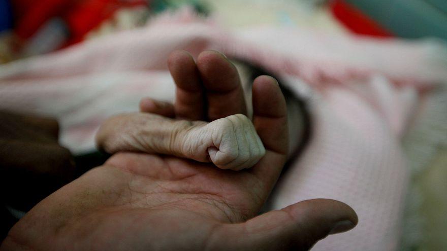 Yemen'de açlıktan dolayı ölen 4 aylık bebek