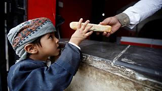 روز جهانی کودک؛ ۲۰۰ هزار کودک یمنی سوءتغذیه دارند