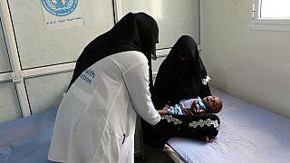 Yemen'de kıtlıktan dolayı 85 bin çocuk yaşamını yitirdi