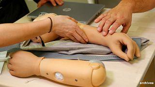 Une Française va recevoir une prothèse bionique