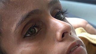 Ghazi, enfant famélique du Yémen, 10 ans, 8 kilos