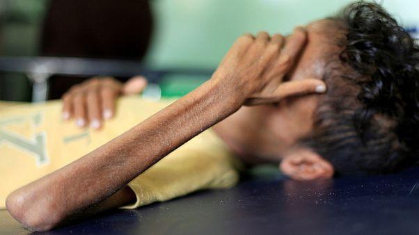 کودک ۱۰ ساله یمنی که به دلیل جنگ و قحطی تنها ۸ کیلوگرم وزن دارد