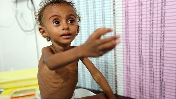 Feryal Eliyas isimli Yemenli kız çocuğu hastanede tedavi görüyor
