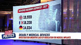 Investigation unearths lack of regulation for medical implants   Raw Politics