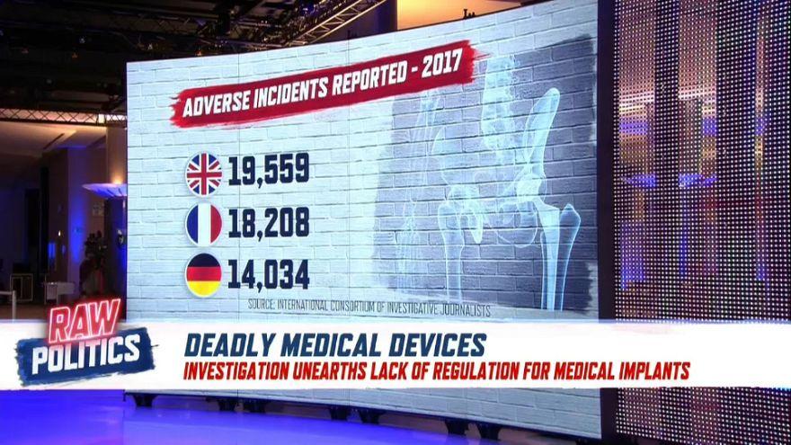 Investigation unearths lack of regulation for medical implants | Raw Politics