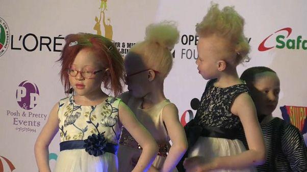 جمعية خيرية كينية تنظم مسابقة لملك وملكة جمال المصابين بالمهق