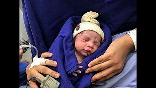 Nace la primera bebé gracias al útero de una donante muerta