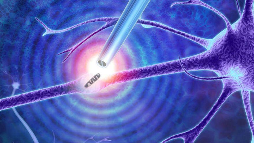 Tıpta yeni keşiflerin kapısını açacak olan alet: Nano-cımbız