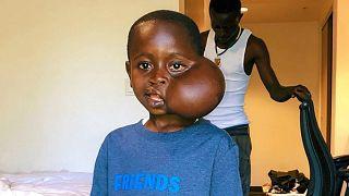 Yüzündeki tümörün alınması için ABD'de ameliyat edilen Kongolu çocuk yaşamını yitirdi