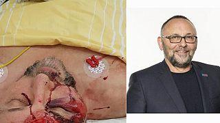 Ξυλοκοπήθηκε βουλευτής του ακροδεξιού AfD