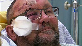 نائب ألماني عن حزب البديل الشعبوي يتحدث عن الهجوم الذي استهدفه ليلة رأس السنة
