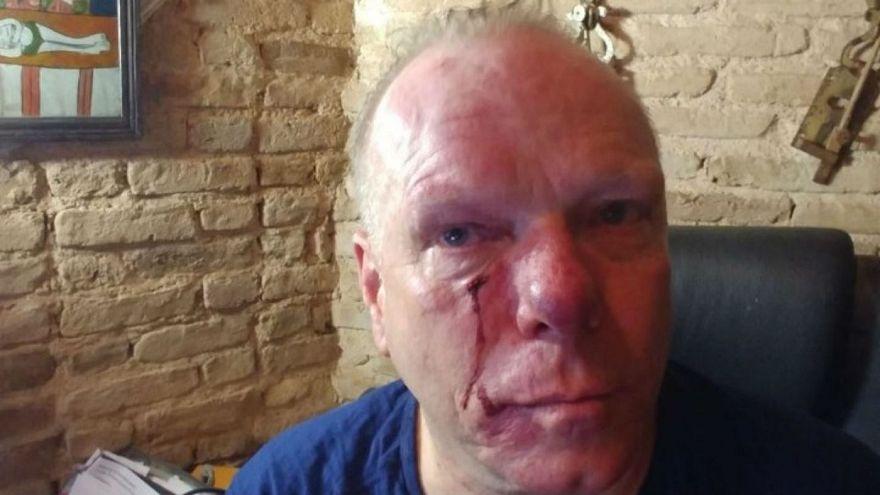 Συλλαλητήριο: Το χρονικό της επίθεσης στον δημοσιογράφο Θ. Ιακόμπι