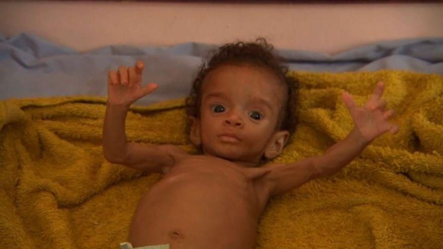 نداء استغاثة إلى العالم من أطفال يمنيين أنهكهم أكل أوراق الشجر