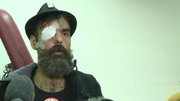 Gilet gialli: bufera sul governo dopo il ferimento del leader Rodriguez