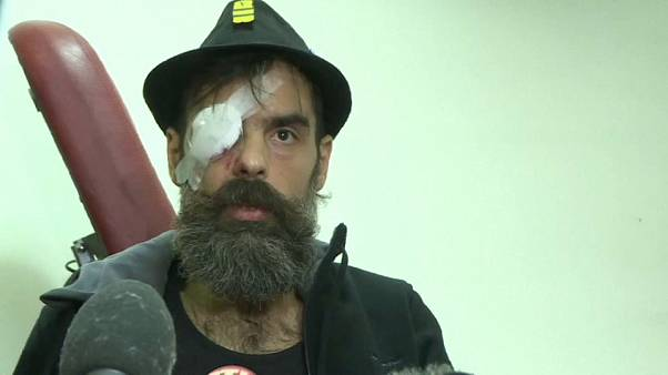 Am Auge verletzter Gelbwestler erhebt Klage gegen Macron
