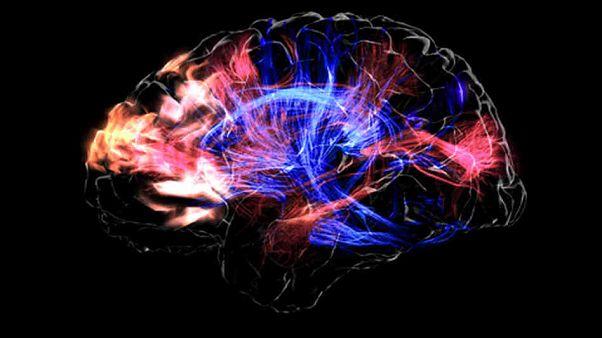 Bilim insanları beyindeki düşünceleri anlaşılır sesli konuşmaya çevirmeyi başardı