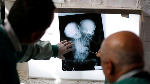 صورة تخطيط الصدى (الأشعة الصوتية) للتوأمين اليمنيين