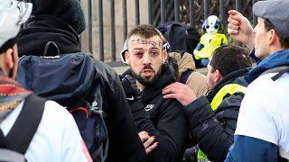 شاهد: إصابة أحد محتجي السترات الصفراء في احتجاجات الأسبوع الثالث عشر