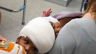 Magyar orvosi siker: sziámi ikrek műtétje