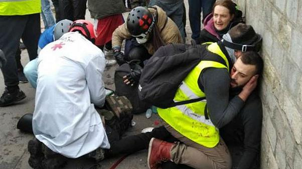 دست قطع شده معترض جلیقهزرد و جنجال بر سر نارنجک خطرناک در فرانسه
