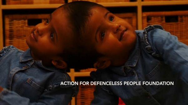 Coopération médicale pour séparer des siamoises du Bangladesh