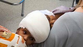 Macar doktorlar başı yapışık ikiz bebeklerin ameliyatını başarıyla tamamladı