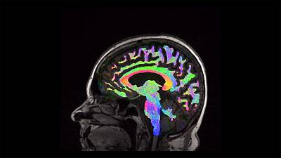 'I was not who I was' - Research into new care for traumatic brain injury victims