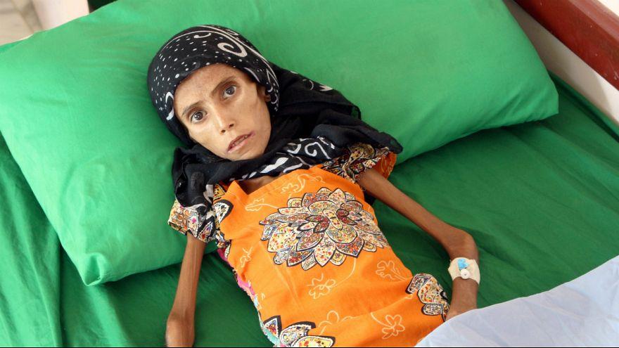 بحران انسانی در یمن؛ دختر ۱۲ ساله با ۱۰ کیلو وزن بستری شد